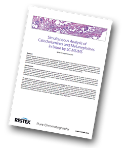 Restek-catecholamines-and-metanephrines